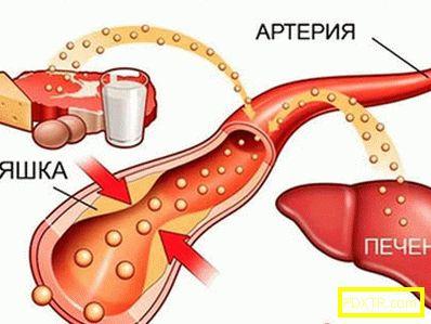 Антихолестеролейна диета за жени и мъже