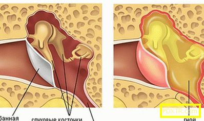 Симптоми на възпаление на средното ухо: диагноза. как да се