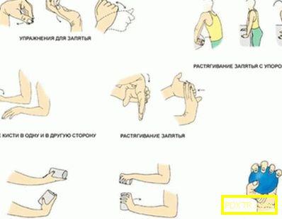 Упражнения след счупване на ръката: възстановяване на