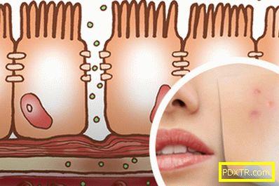 Синдром на повишена чревна пропускливост и проблемна кожа