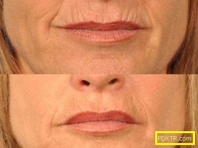 Бръчки над горната устна: средства за изглаждане, домашни