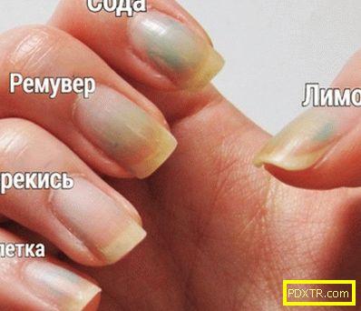 Начало методи за избелване на пожълтели нокти