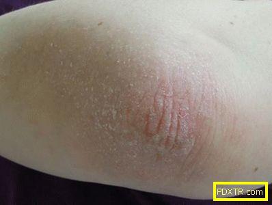Причини за лющене на кожата по лактите, етапи и форми на