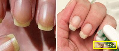 Как у дома да се постигне идеалното белота на ноктите?